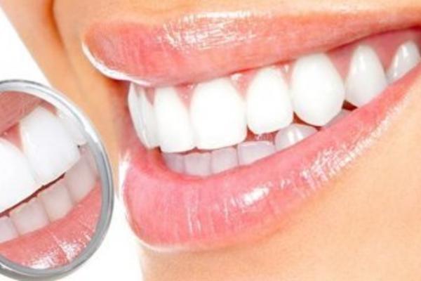 20 марта Всемирный день здоровья полости рта